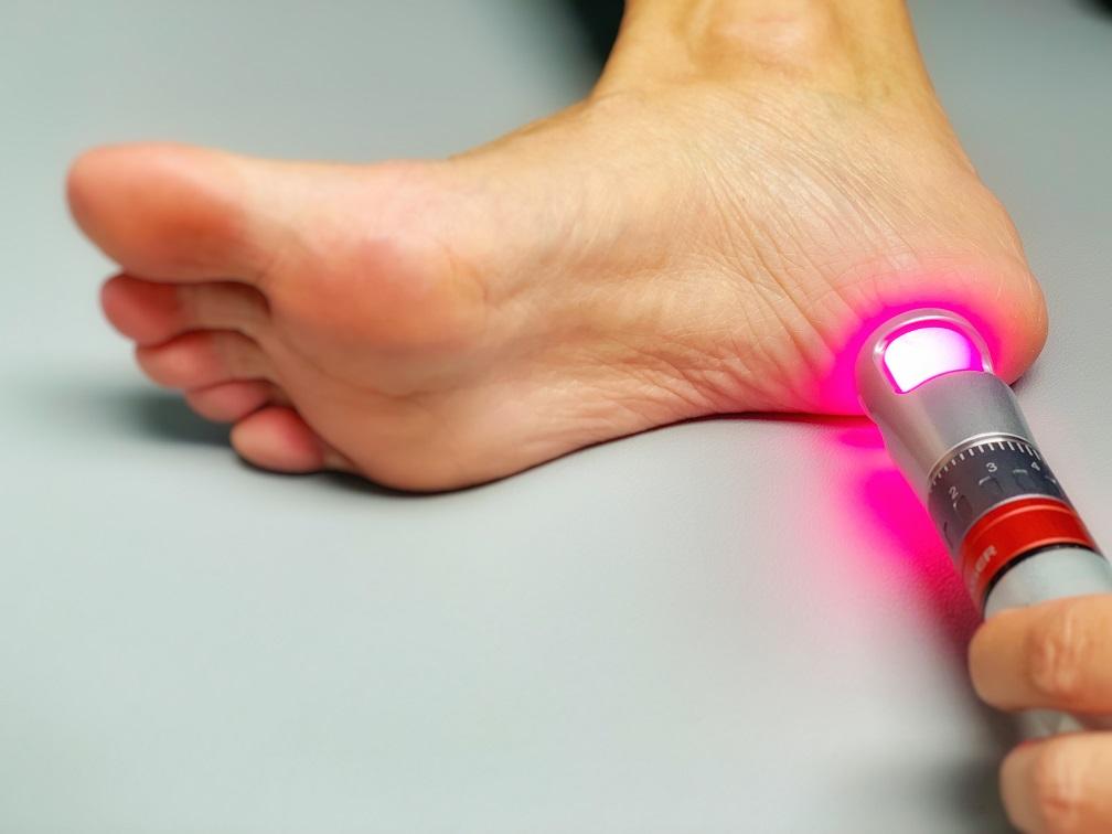 Laser Heel